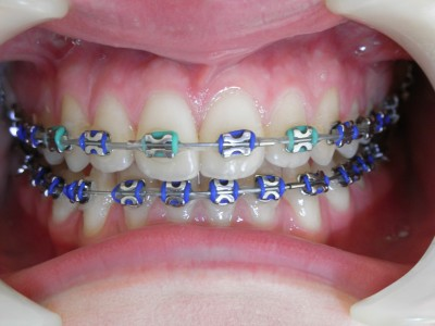 Labial braces, Denise Taylor Orthodontics